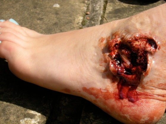 Foot Exit Wound (Casualty)