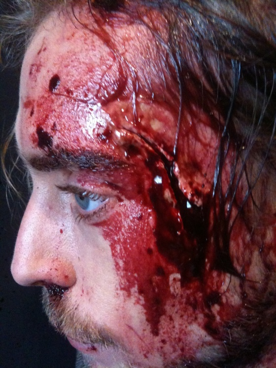 Detail head wound